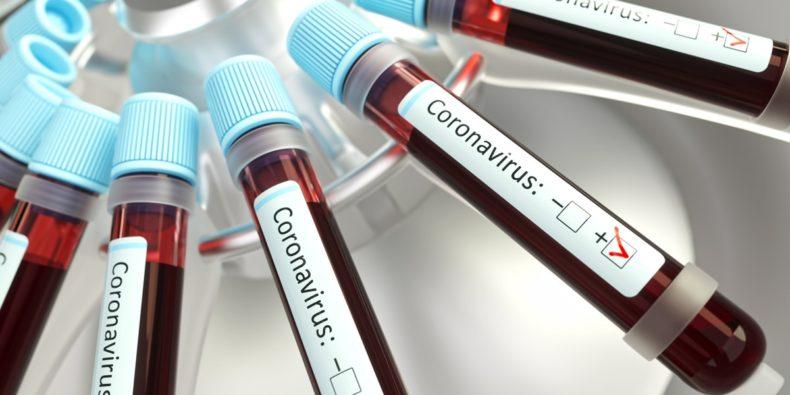 coronavírus no peru - o coronavirus e as viagens no Peru
